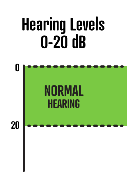 0-20dB is normal hearing.