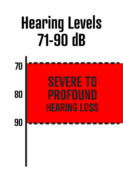 71-90 dB is sever hearing loss.